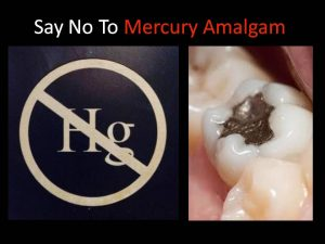Momentum builds to end the largest mercury use in U.S.A. – dental amalgam