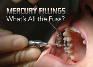 Mercury in Dentistry Risk to Human & Environment